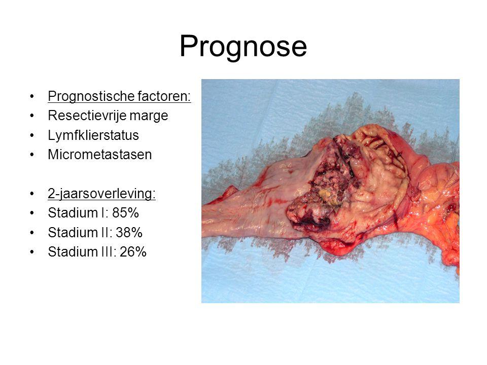 Prognose Prognostische factoren: Resectievrije marge Lymfklierstatus