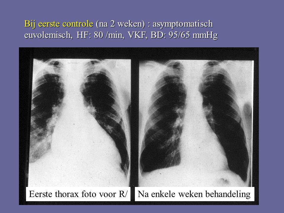 Bij eerste controle (na 2 weken) : asymptomatisch euvolemisch, HF: 80 /min, VKF, BD: 95/65 mmHg