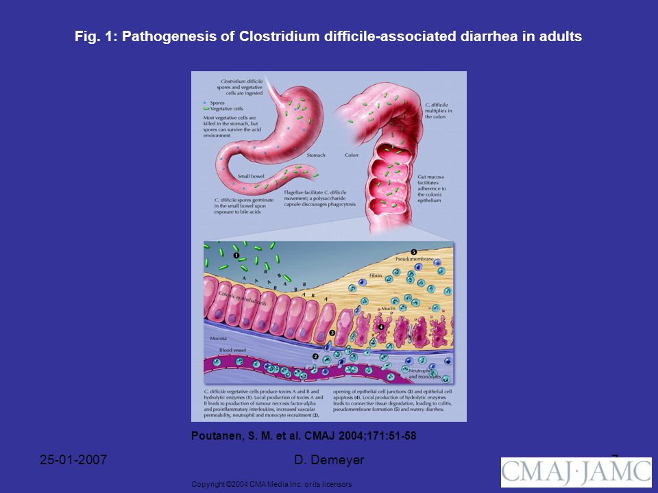 Fig. 1: Pathogenesis of Clostridium difficile-associated diarrhea in adults