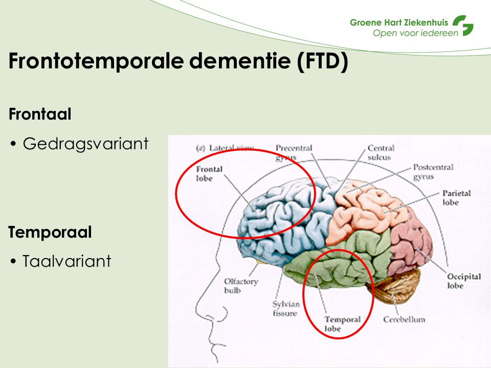Frontotemporale dementie (FTD)