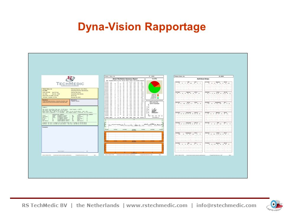 Dyna-Vision Rapportage
