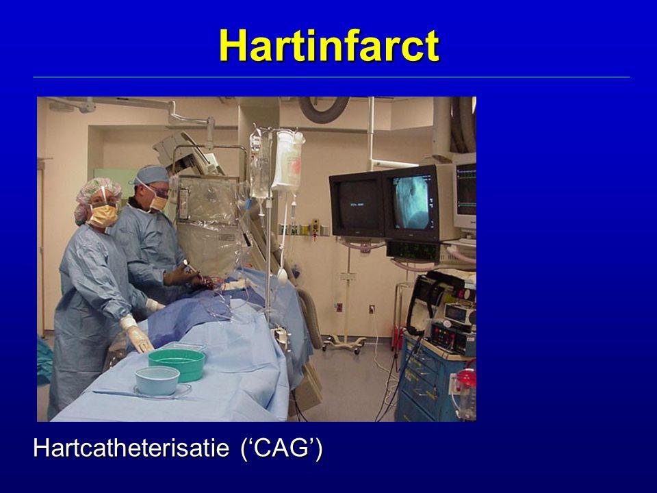 Hartinfarct Hartcatheterisatie ('CAG')