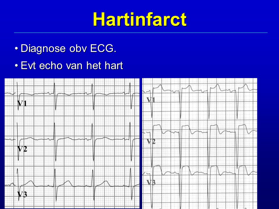 Hartinfarct Diagnose obv ECG. Evt echo van het hart