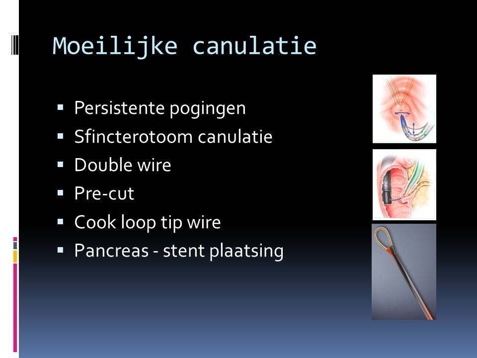 Moeilijke canulatie Persistente pogingen Sfincterotoom canulatie
