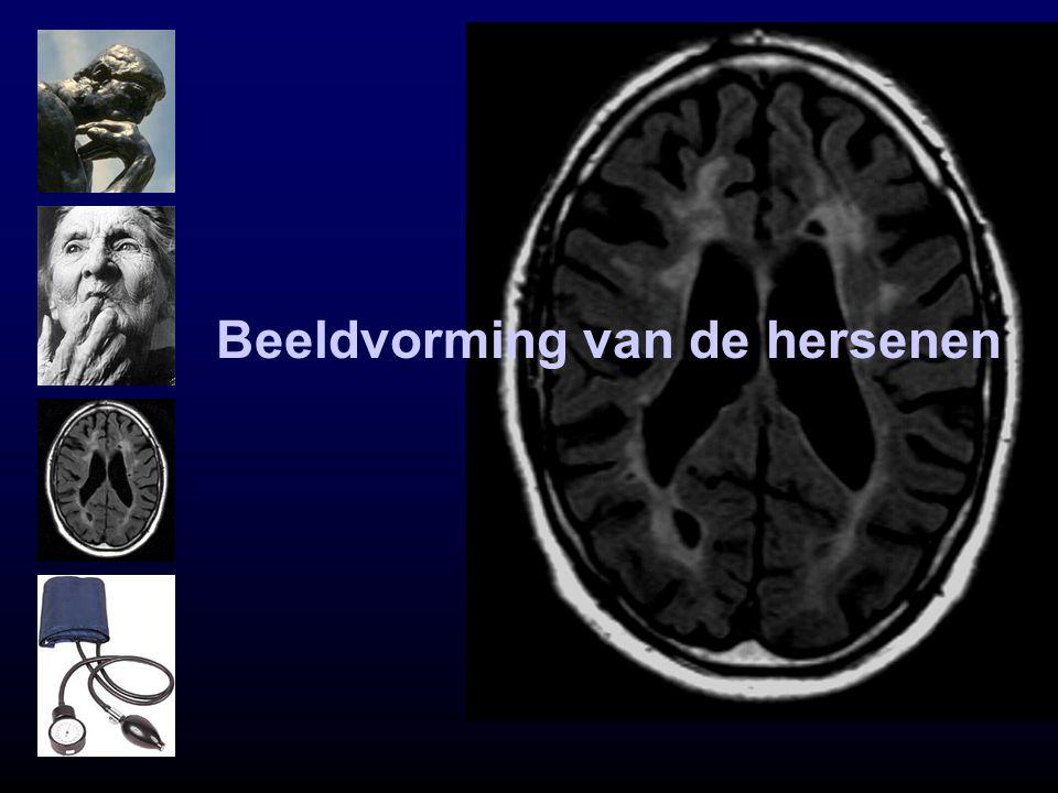 Beeldvorming van de hersenen