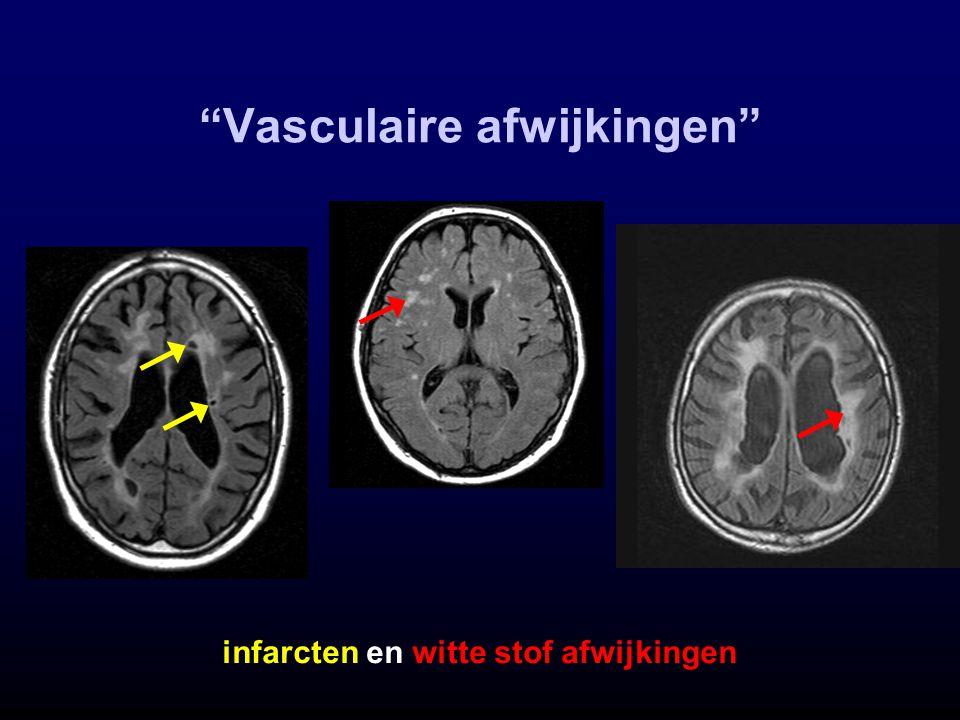 Vasculaire afwijkingen