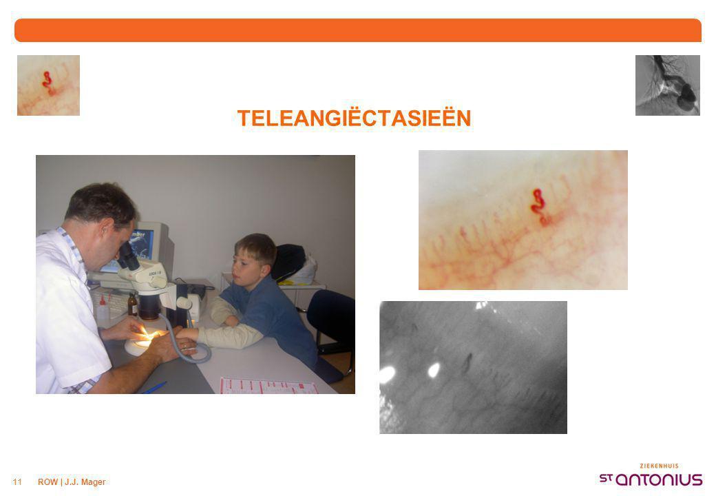 ORGAAN LOKALISATIE Teleangiëctasieën in het maag-darm stelsel