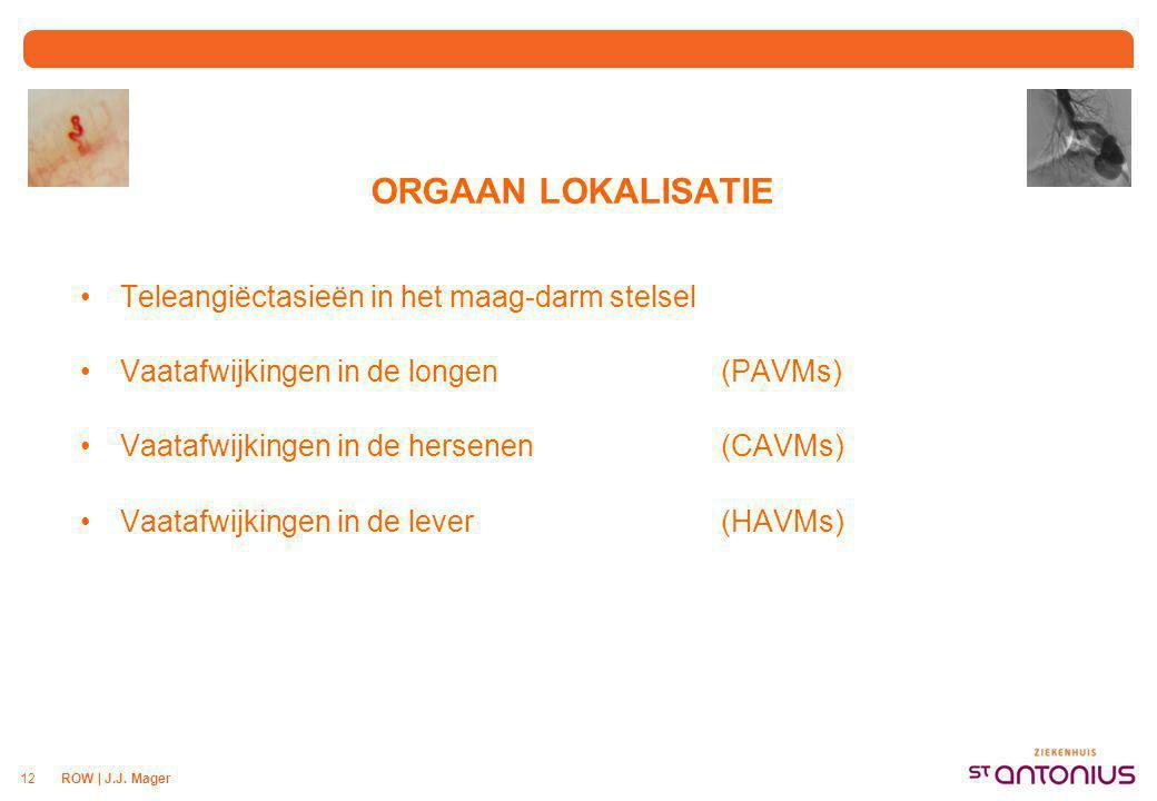 MAAG-DARM STELSEL Teleangiëctasieën of kleine vaatafwijkingen
