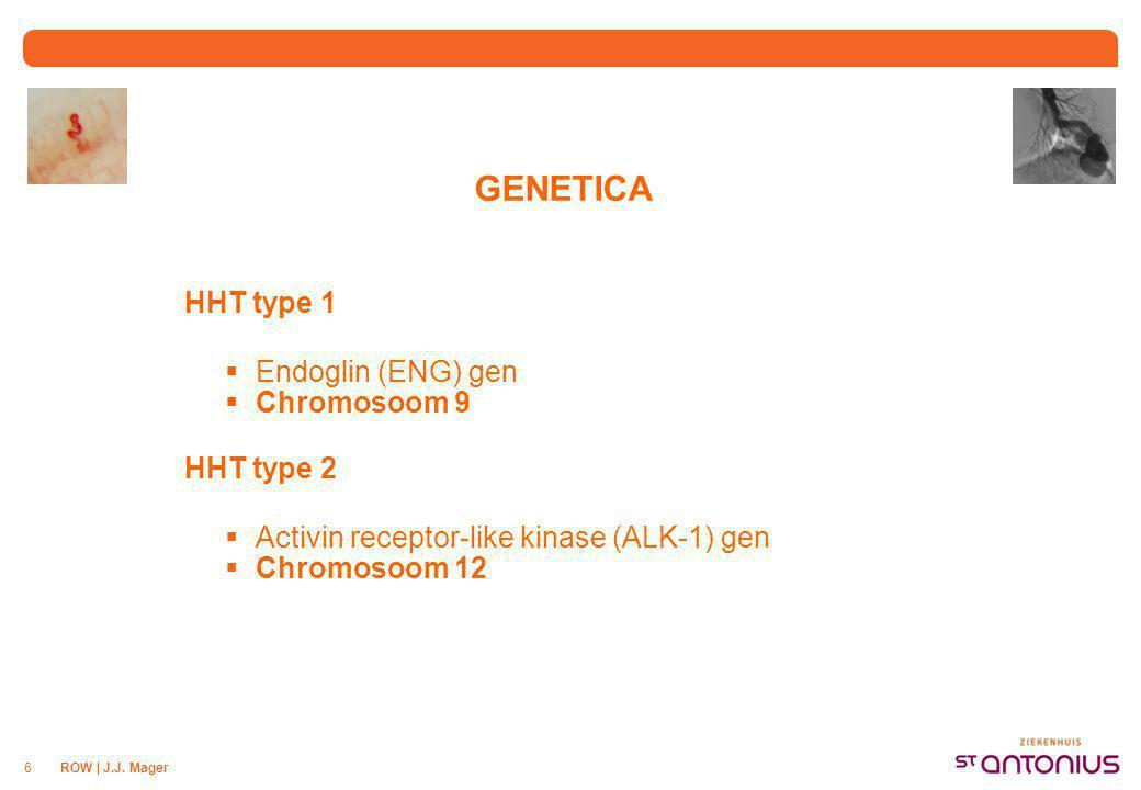 GENETICA HHT type 3 en 4 Gen Chromosoom 5 en 7