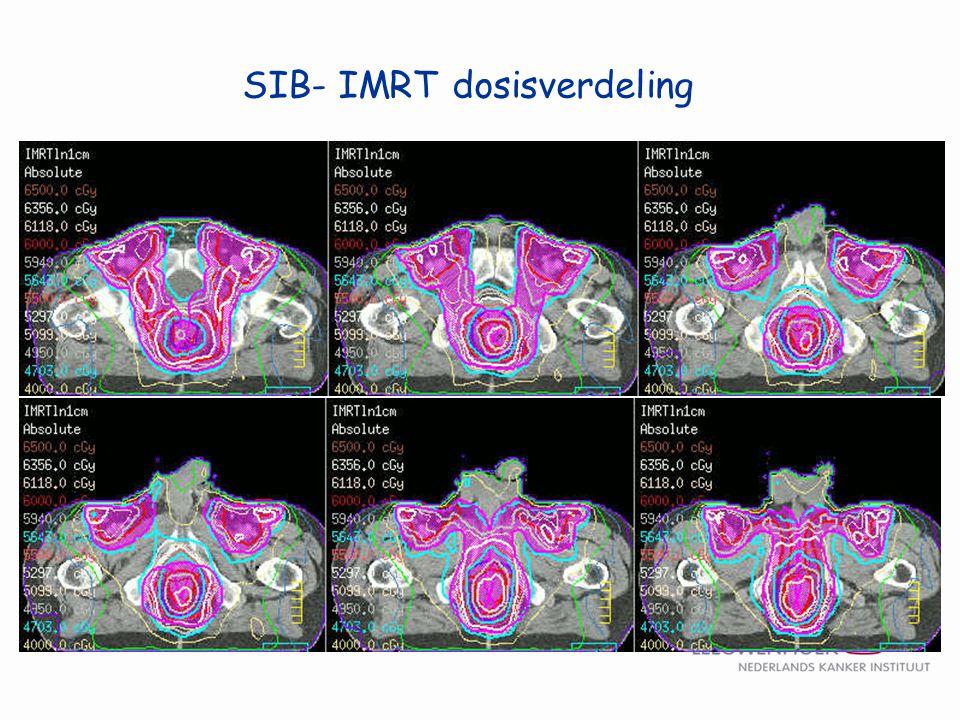 SIB- IMRT dosisverdeling