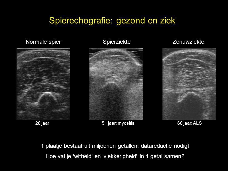 Spierechografie: gezond en ziek