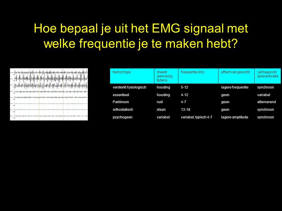Hoe bepaal je uit het EMG signaal met welke frequentie je te maken hebt