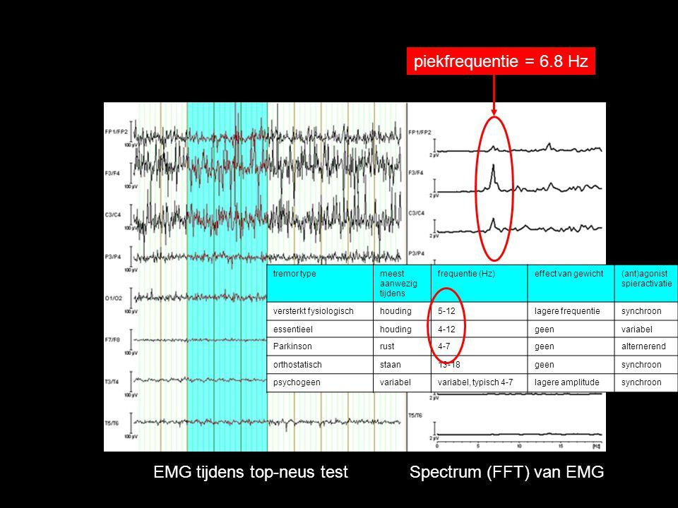 EMG tijdens top-neus test Spectrum (FFT) van EMG