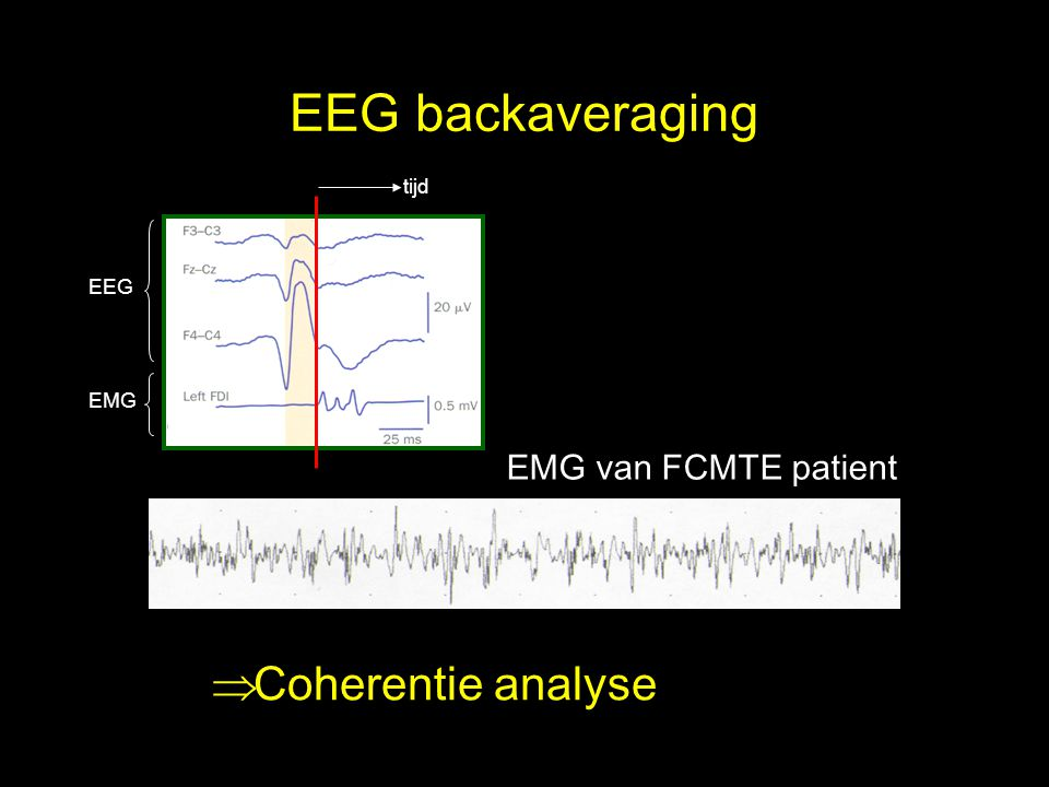 EEG backaveraging Coherentie analyse EMG van FCMTE patient tijd EEG