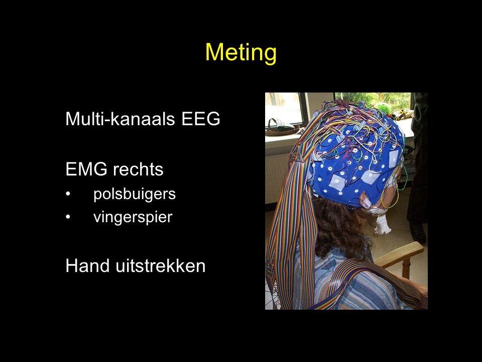 Meting Multi-kanaals EEG EMG rechts Hand uitstrekken polsbuigers