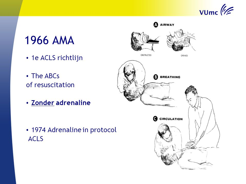 1966 AMA 1e ACLS richtlijn The ABCs of resuscitation Zonder adrenaline