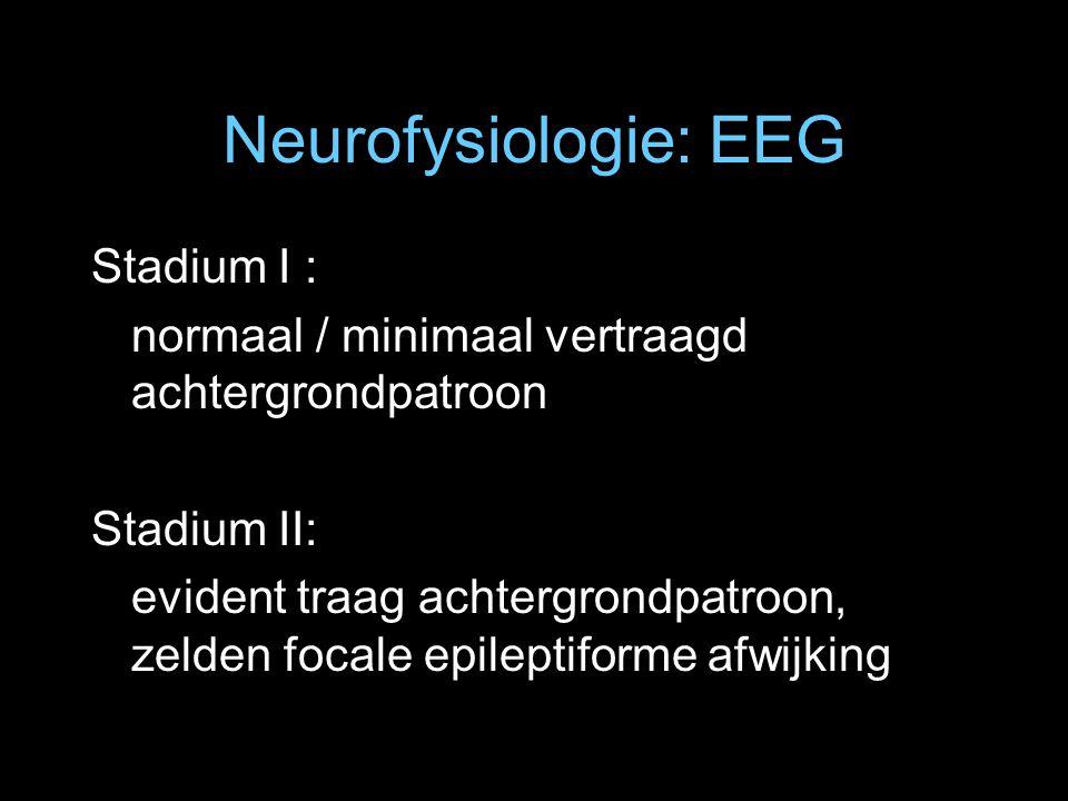 Neurofysiologie: EEG Stadium I :