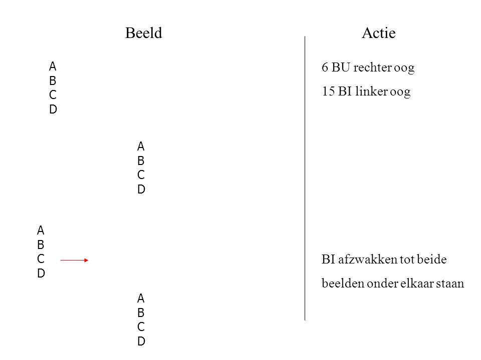 Beeld Actie 6 BU rechter oog 15 BI linker oog BI afzwakken tot beide