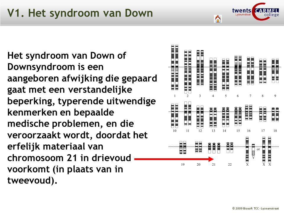 V1. Het syndroom van Down