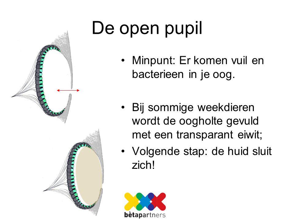 De open pupil Minpunt: Er komen vuil en bacterieen in je oog.