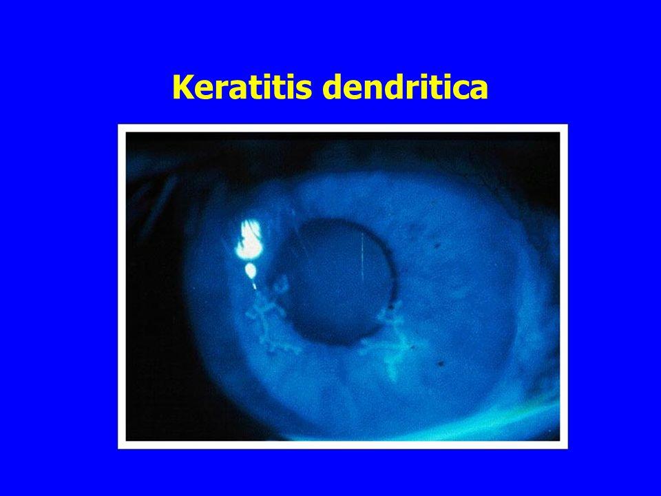 Keratitis dendritica