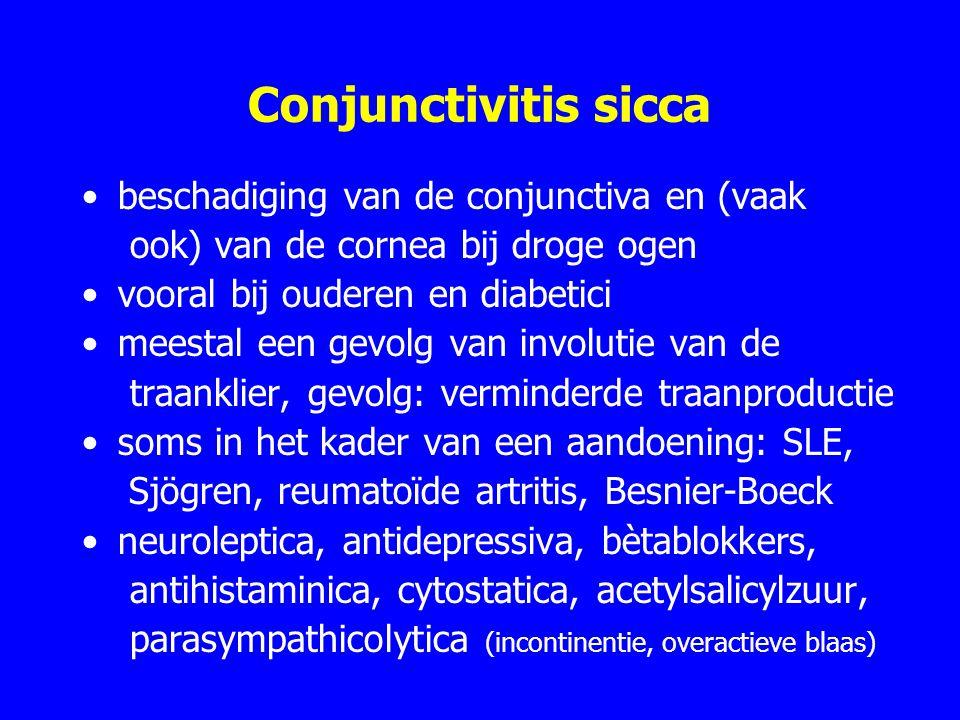 Conjunctivitis sicca beschadiging van de conjunctiva en (vaak