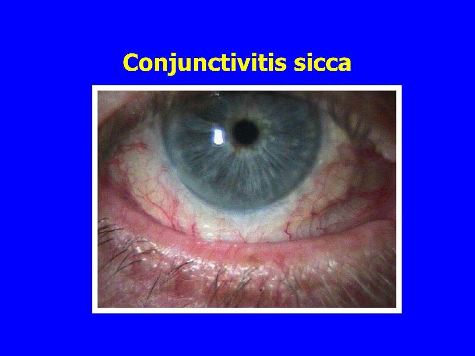 Conjunctivitis sicca