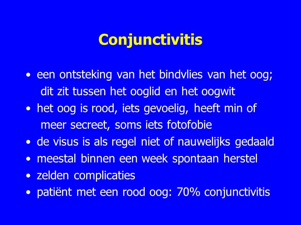 Conjunctivitis een ontsteking van het bindvlies van het oog;