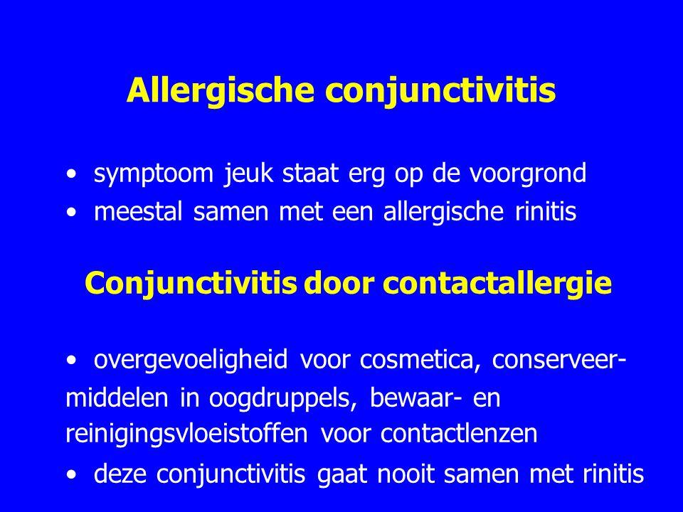 Allergische conjunctivitis