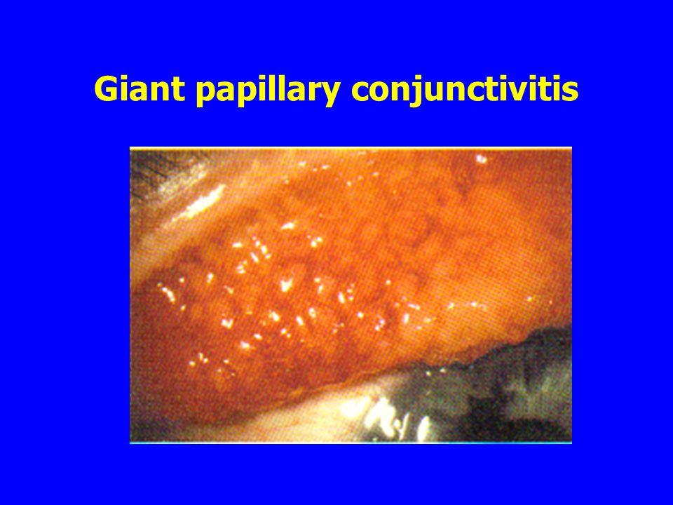Giant papillary conjunctivitis