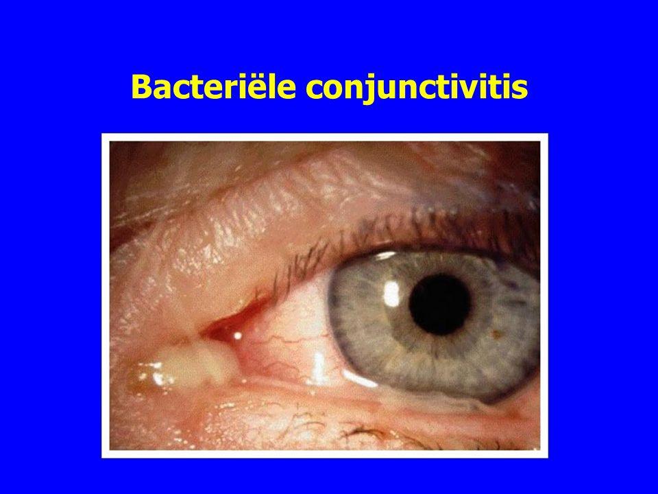 Bacteriële conjunctivitis