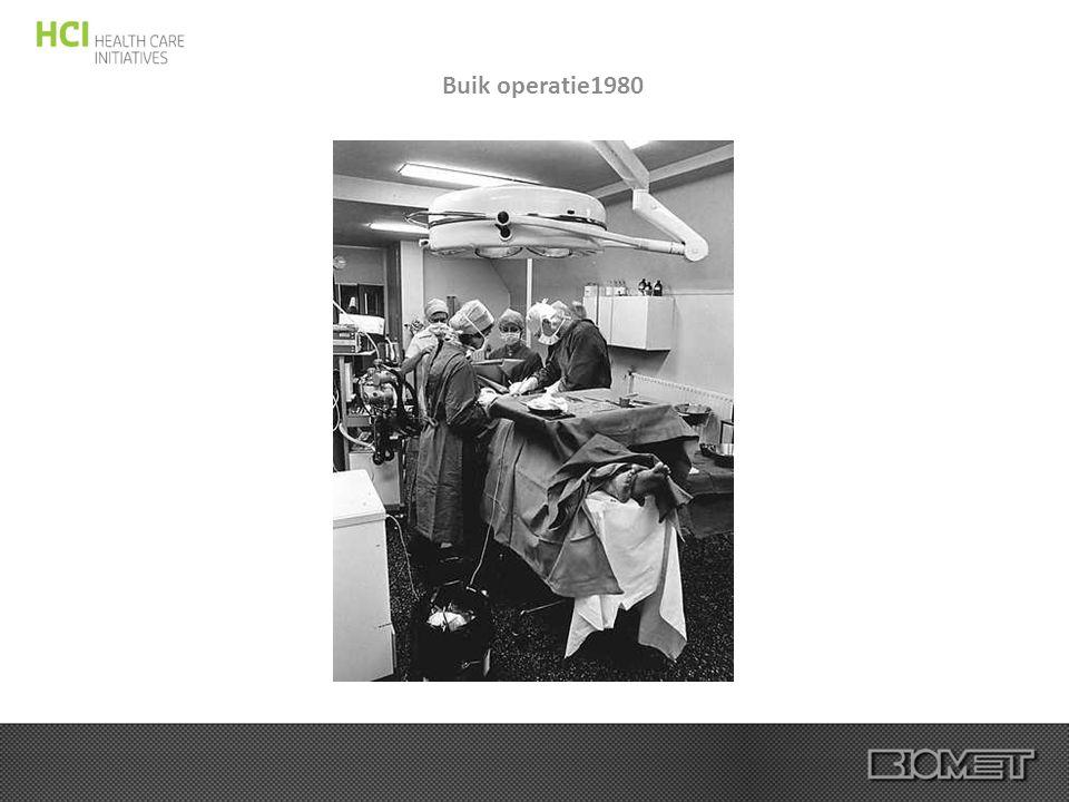 Buik operatie1980