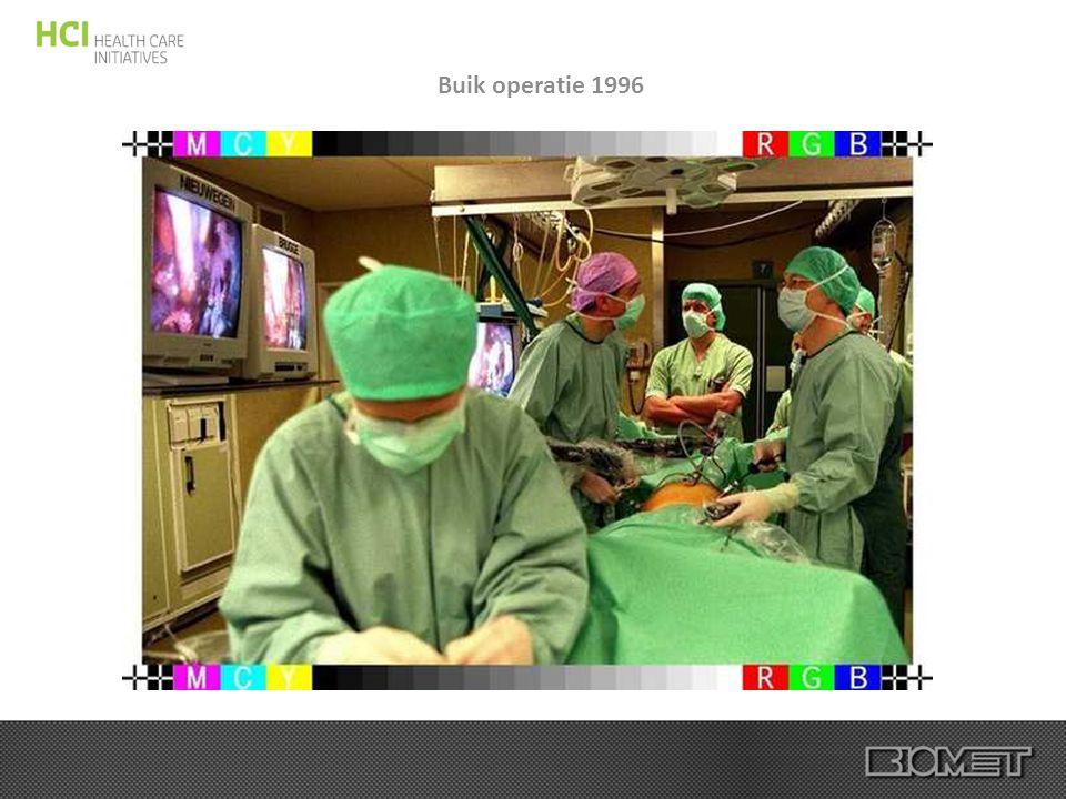 Buik operatie 1996