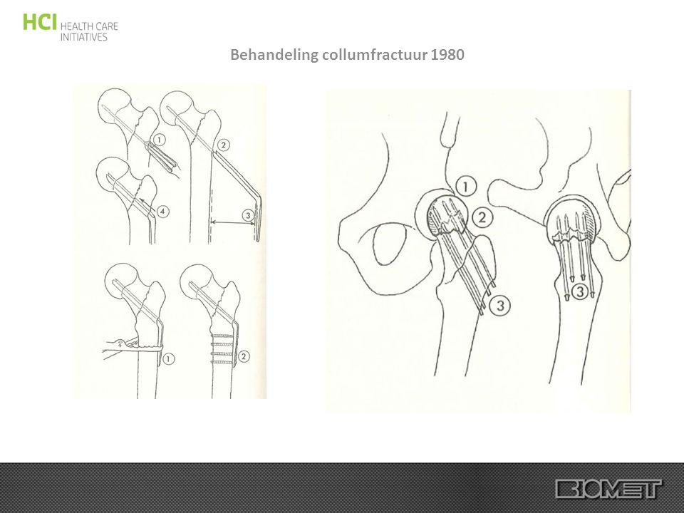 Behandeling collumfractuur 1980