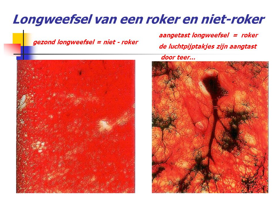 Longweefsel van een roker en niet-roker