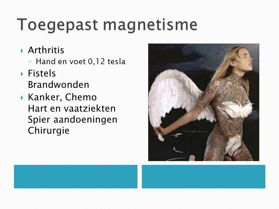 Toegepast magnetisme Arthritis Fistels Brandwonden
