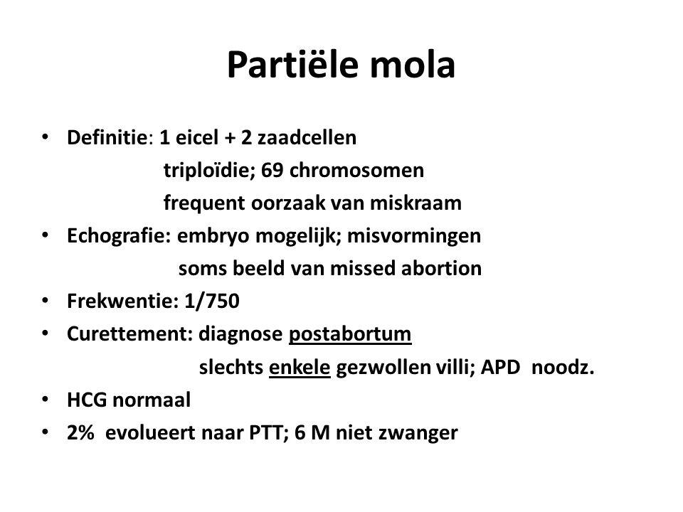 Partiële mola Definitie: 1 eicel + 2 zaadcellen