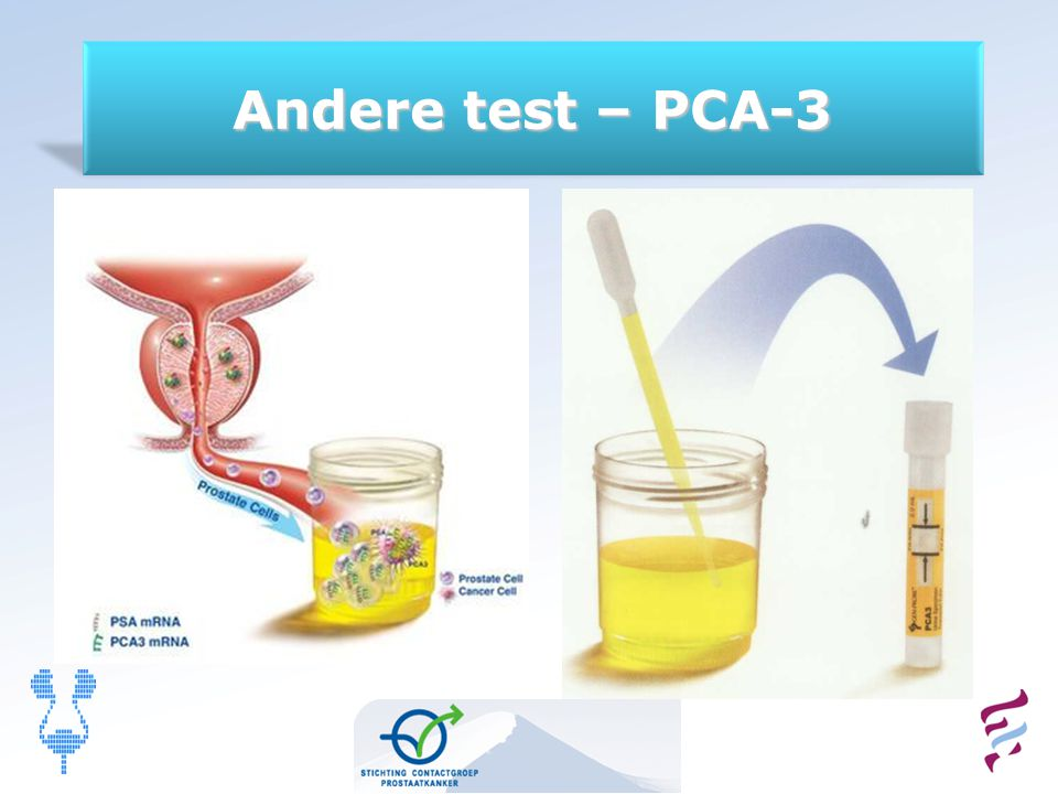 Andere test – PCA-3 11