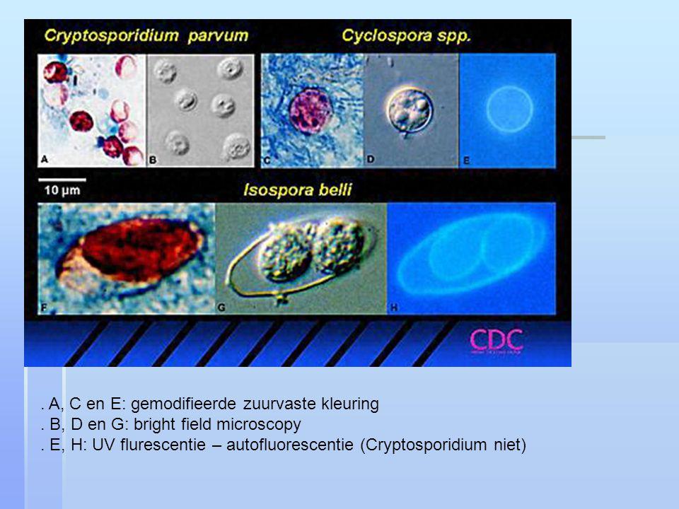 . A, C en E: gemodifieerde zuurvaste kleuring