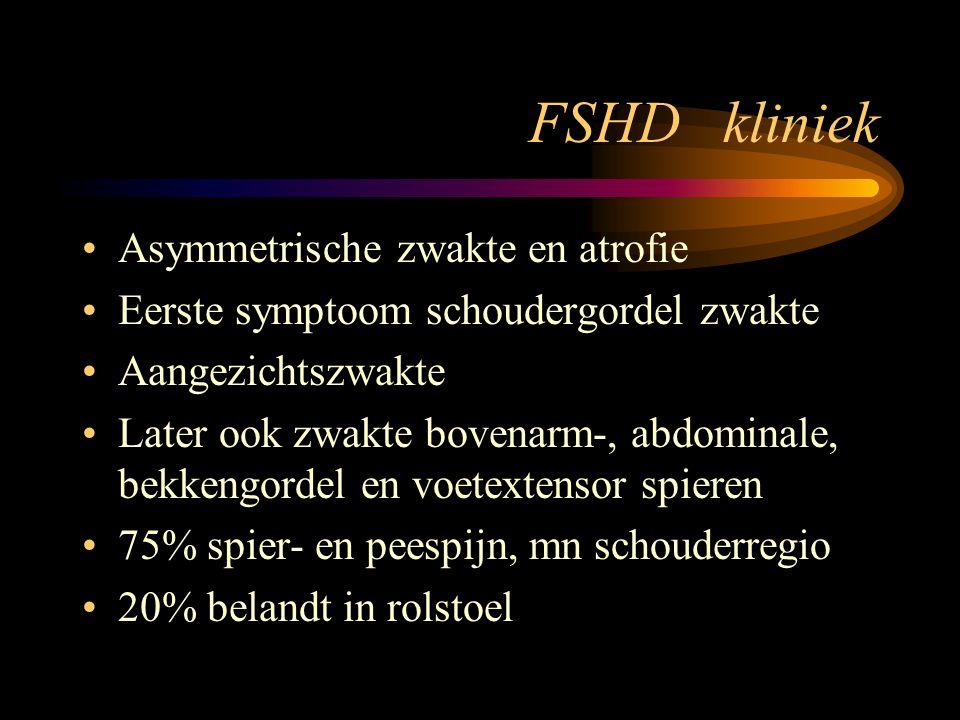 FSHD kliniek Asymmetrische zwakte en atrofie