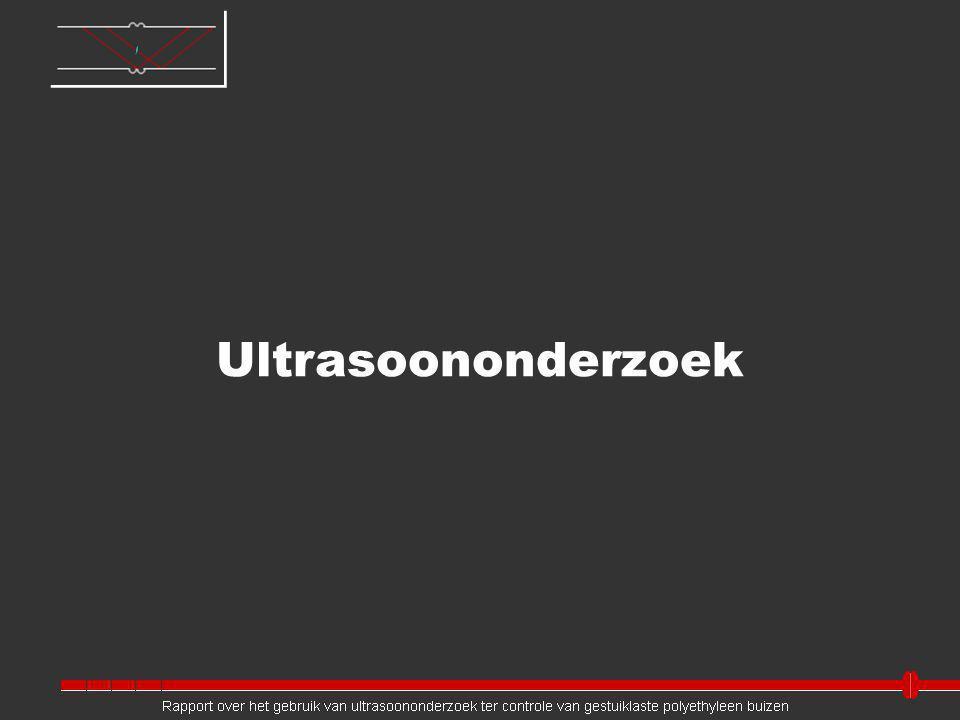 Ultrasoononderzoek Jeroen: