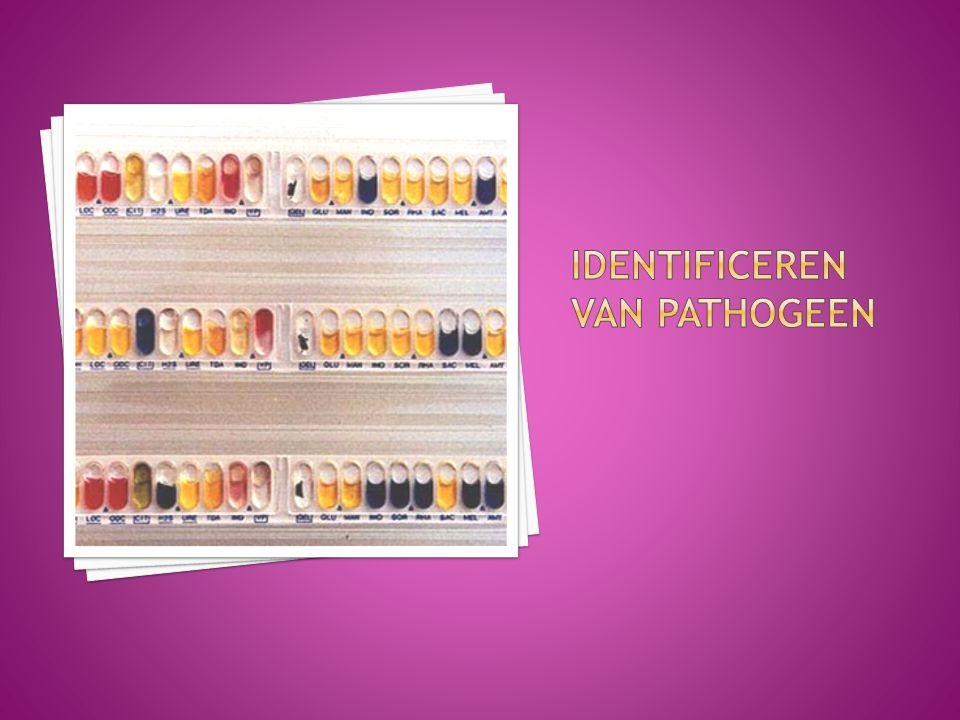 Identificeren van pathogeen