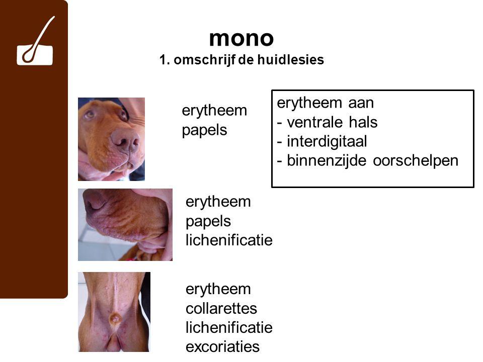 mono 1. omschrijf de huidlesies
