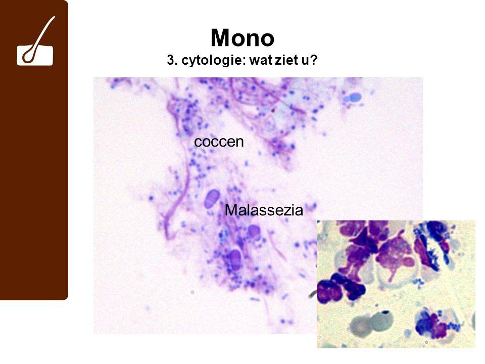 Mono 3. cytologie: wat ziet u