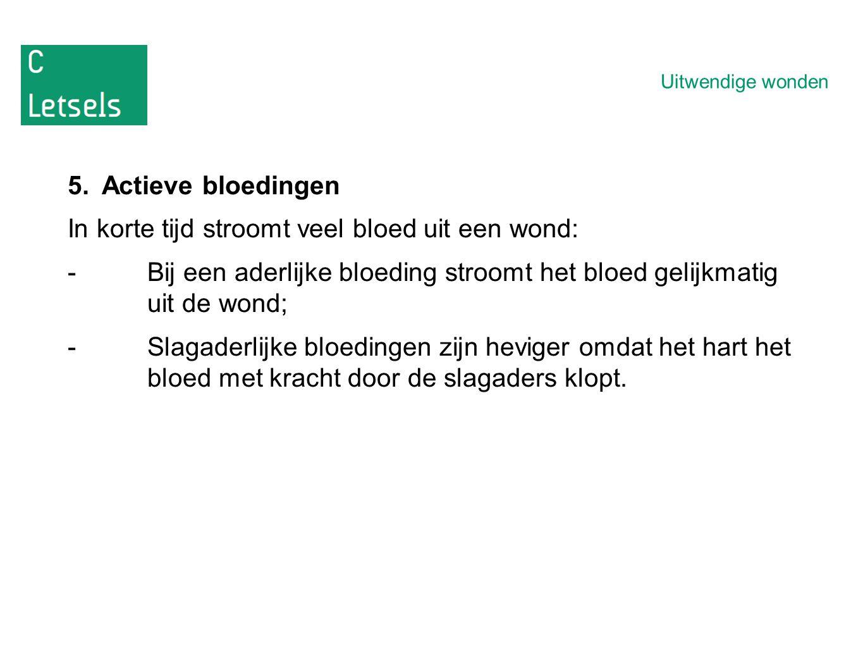 In korte tijd stroomt veel bloed uit een wond: