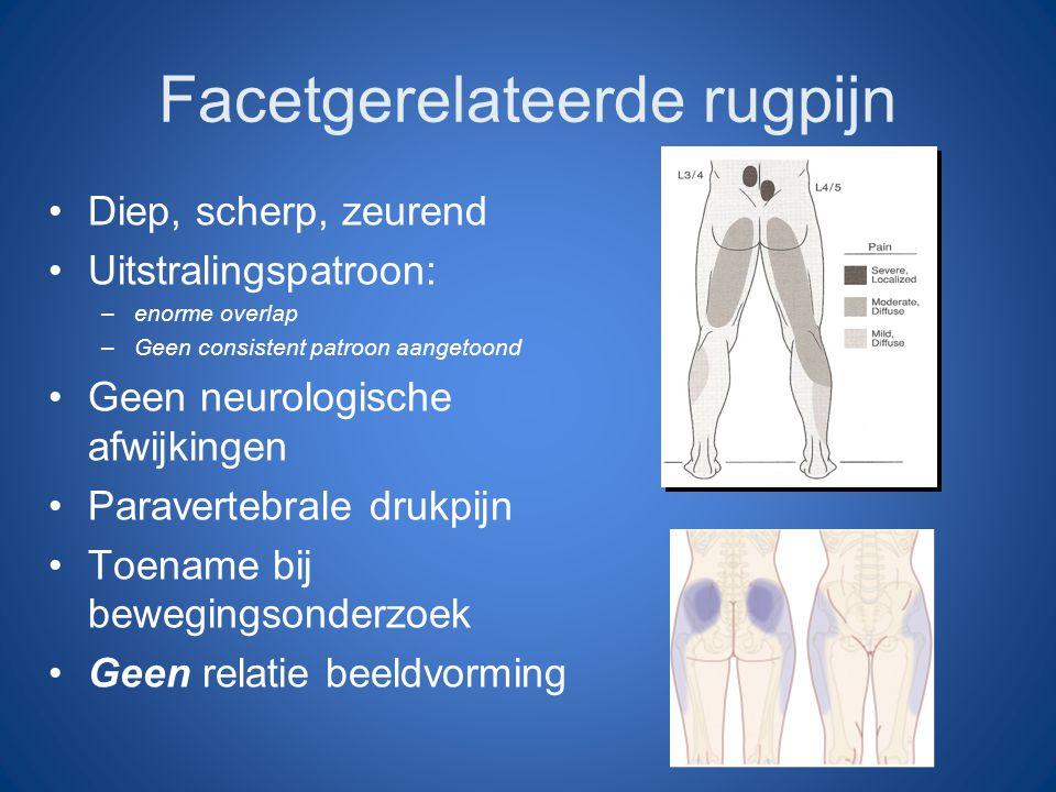 Facetgerelateerde rugpijn