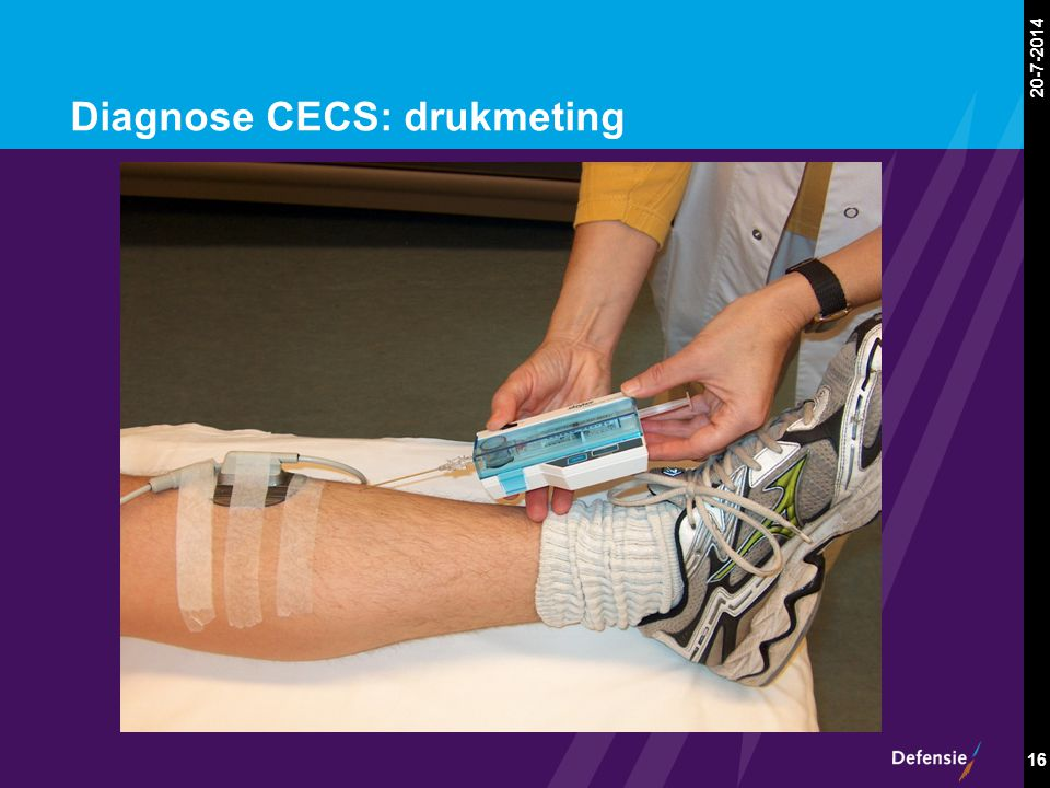 Diagnose CECS: drukmeting