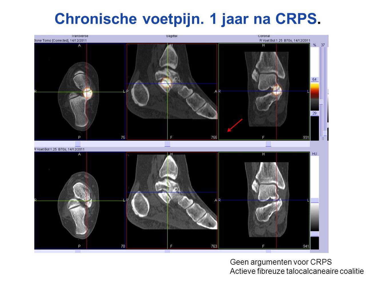 Chronische voetpijn. 1 jaar na CRPS.