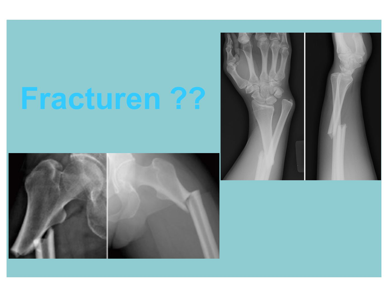 Fracturen
