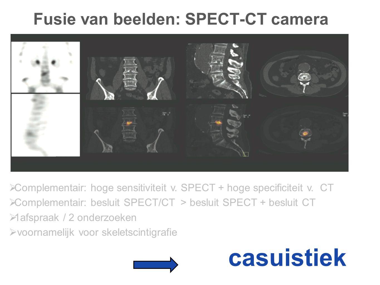 Fusie van beelden: SPECT-CT camera